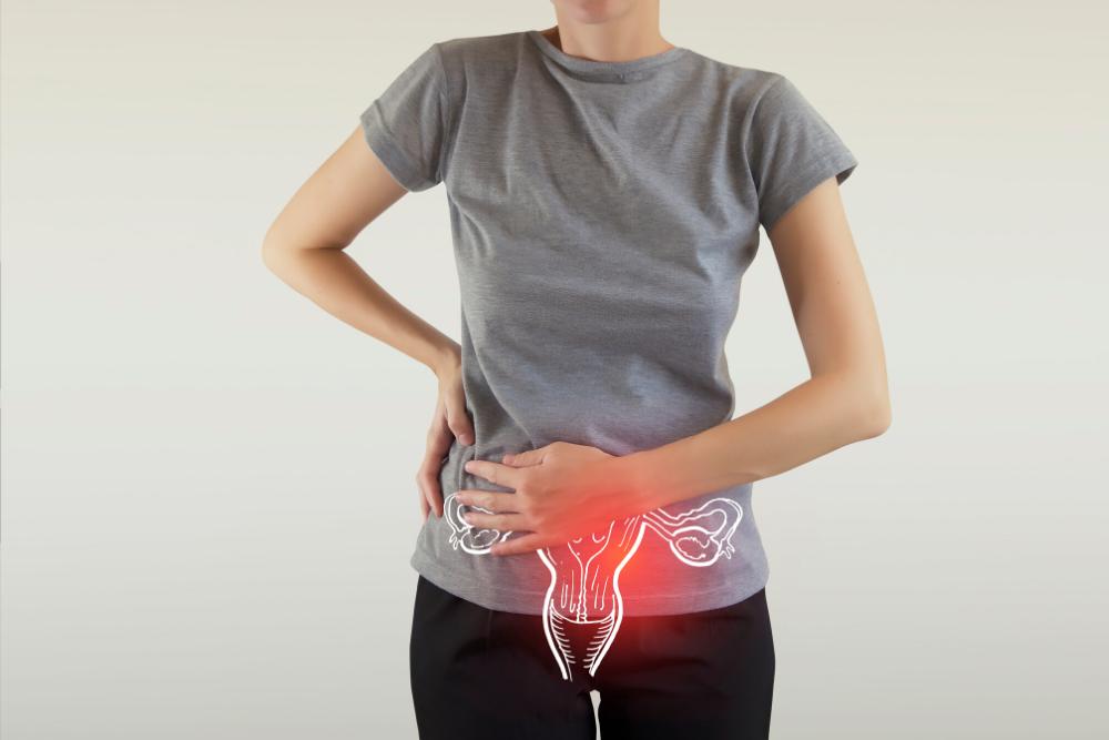 6 fatos sobre endometriose que você precisa saber